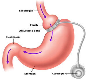 Chelmsford Hypnotherapy Virtual Gastric Band
